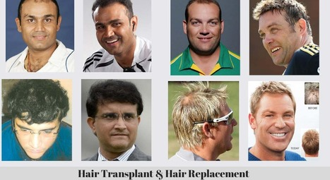 Cricketers Who Have Undergone Hair Loss | Berkowits Hair & Skin Clinic | Scoop.it