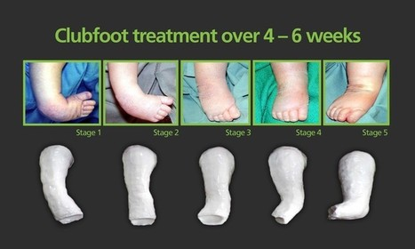 Club Foot Surgery in India | Health | Scoop.it