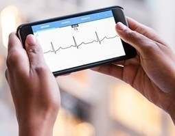 AliveCor Heart Monitor used to detect postoperative atrial fibrillation after heart surgery - iMedicalApps   Healthcare and Medical Apps   Scoop.it