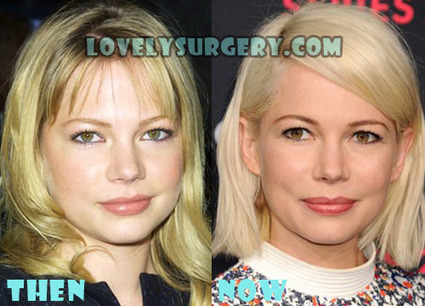 Michelle Williams Plastic Surgery Before and After Photos | Celebrity Plastic Surgery | Scoop.it