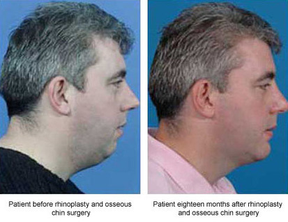 Enhance the Appearance of Your Chin with Genioplasty | Houston Plastic and Craniofacial Surgery | Scoop.it