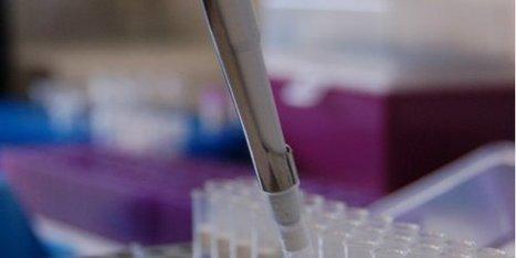 Acobiom veut lever 1,5 M€ d'ici le 1er trimestre 2017   Biotech, Pharmas and ideas   Scoop.it