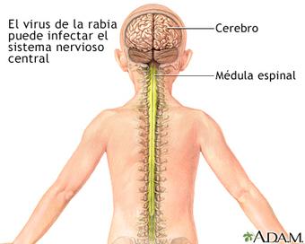 Rabia: MedlinePlus enciclopedia médica illustración | Rabia ( Lyssavirus ) | Scoop.it