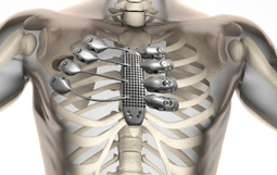 Un patient reçoit un sternum et des côtes imprimés en 3D | Libertés Numériques | Scoop.it