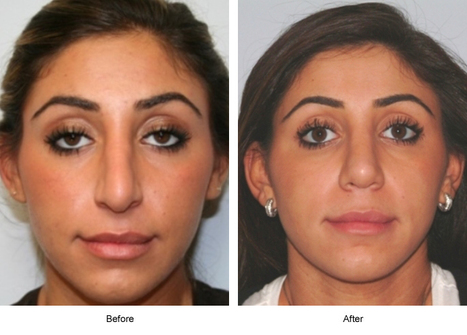A Nose Job for a Well-shaped Nose | Houston Plastic and Craniofacial Surgery | Scoop.it