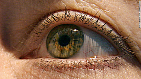 First FDA-approved bionic eye ready for commercial launch in US (video)   Real Estate Plus+ Daily News   Scoop.it