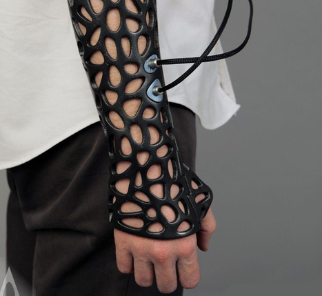 3D-printed cast uses ultrasound to speed healing   Technoculture   Scoop.it