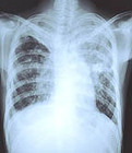 Could Stem Cells Cure Drug-Resistant Tuberculosis? - Drugs.com MedNews | What's happening today in the world of Regenerative Medicine | Scoop.it