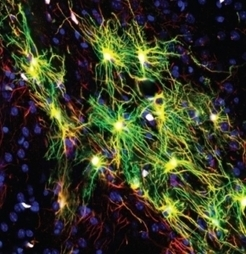 SUICIDE et DÉPRESSION: Les astrocytes mis en accusation | Cerveau intelligence | Scoop.it