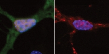 DNA damage may cause ALS (Lou Gehrig's disease), involving SIRT1, HDAC1 and sarcoma breakpoint protein FUS | Amazing Science | Scoop.it