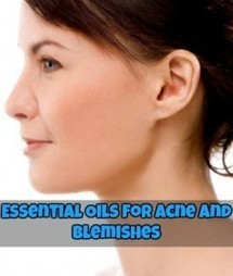 Essential Oils for Acne and Blemishes | Natural Health & Healing | Scoop.it