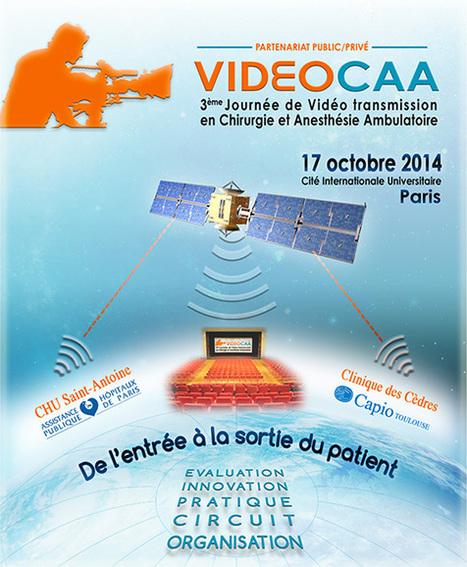 VideoCAA - 17 octobre 2014 - VIDEOCAA | Chirurgie ambulatoire | Scoop.it