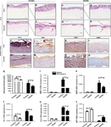 Oncogene - Targeting the hedgehog transcription factors GLI1 and GLI2 restores sensitivity to vemurafenib-resistant human melanoma cells | Melanoma BRAF Inhibitors Review | Scoop.it