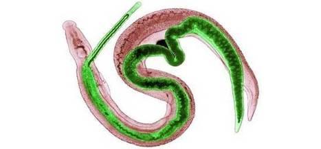 Un parasite utile contre la maladie de Crohn ? | ImmunoUPS | Scoop.it
