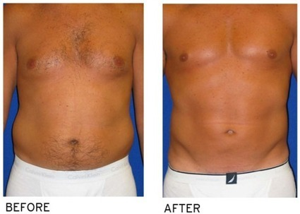 Get the best vaser lipo body contouring at SIR | Sarasota Interventional Radiology | Scoop.it