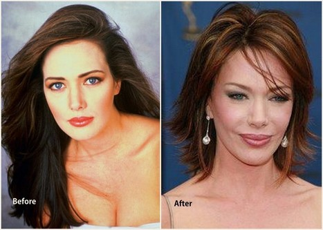 Hunter Tylo Plastic Surgery Before After
