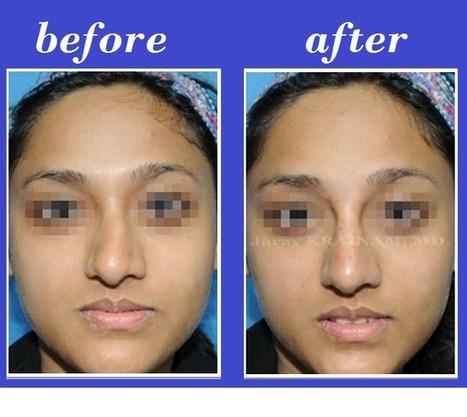 Deviated Nose Filler Injection | Bangkok Aesthetic Surgery Center | Bangkok Aesthetic Surgery | Scoop.it