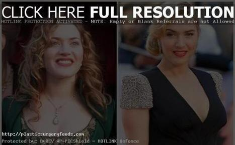 Kate Winslet Plastic Surgery Before and After Nose Surgery | Plastic Surgery Before and After Photos | Scoop.it