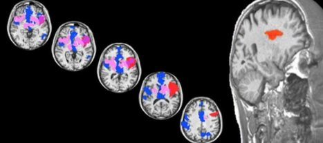 Researchers find brain's 'sweet spot' for love in neurological patient | Cognitive Psychology. Cognitive and behavioural Neuroscience | Scoop.it