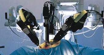 Laparoscopic surgery Bangalore, Bariatric Surgery Bangalore | Health | Scoop.it