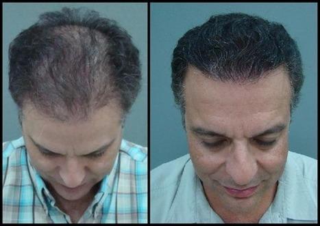 Stem Cell FUE Hair Transplant   Hair Transplant Dubai   Scoop.it