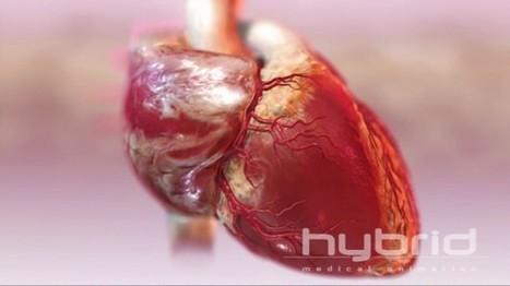 Animaciones médicas para entender nuestro cuerpo - Naukas   ViniTolentino   Scoop.it