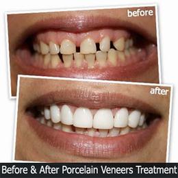 Enhance the Look of Your Teeth with Porcelain Veneers | Cosmetic Dentist | Scoop.it