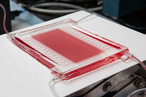 New Microfluidic Oxygenator Offers Improvements Over ECMO | Medgadget | Génie biomédical clinique | Scoop.it