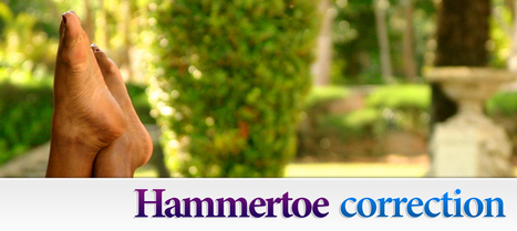 Hammertoes Surgery | Ankle and Foot Centers of Georgia | Hammer Toe Cumming | Scoop.it