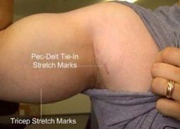 What Are Stretch Marks Actually? | stretch marks | Scoop.it