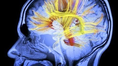 Call for more brain injury units | TBI | Scoop.it
