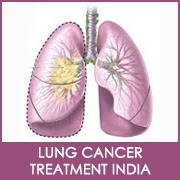 Are they any fixed symptoms for Head and neck cancer  treatment India? | Has Surgical Oncology India set new standards? | Scoop.it