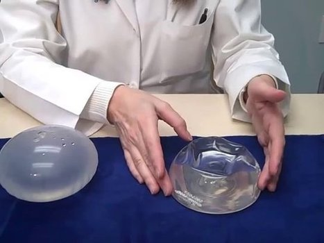 Breast Implants Nashville TN - Exchange after 10 years? Franklin TN Breast Augmentation Surgery | Breast Augmentation Nashville TN | Scoop.it
