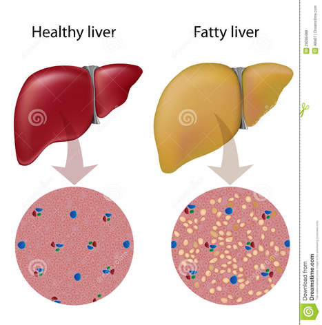 Why Liver TransPlant In India ? | Liver Transplant India | Scoop.it