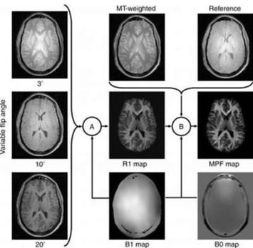 MRI Shows Gray Matter Myelin Loss Strongly Related to MS Disability | Kinsanity | Scoop.it