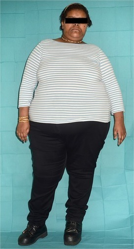 Sequencing Uncovers New Monogenic Form of Obesity | Amazing Science | Scoop.it
