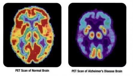 New blood test predicts onset of Alzheimer's disease with 90 - Gizmag | Patent Agent | Scoop.it