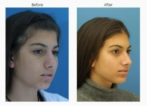 Teens And Rhinoplasty | Facial Plastic Surgery in New York | Scoop.it
