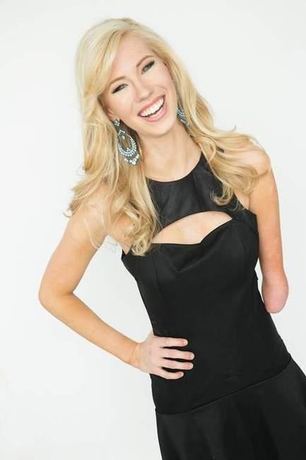 Une prétendante au titre de Miss America n'a qu'un bras | Mais n'importe quoi ! | Scoop.it