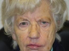Parálisis facial de párpados: VII par craneal y lagoftalmo | SALUD OCULAR: GAFA TÉCNICA, OJO SECO Y DEPORTE GRADUADA | Scoop.it