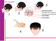 Hair Transplant Surgery, Hair Transplantation in South Delhi | Hair Transplantation | Scoop.it
