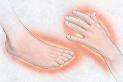 Complex Regional Pain Syndrome (CRPS) Guide: Causes, Symptoms and Treatment Options | Info on CRPS or RSD | Scoop.it