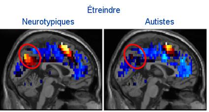 Percée : diagnostiquer l'autisme (de haut niveau) à partir d'images cérébrales liées aux pensées sociales | #LifeHacks #QuantifiedSelf #Transhuman | Scoop.it