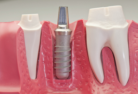 Low Cost Dental Implants india | Best Dental Hospital Chanda Nagar | Scoop.it