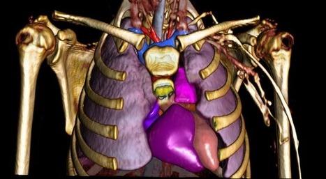 L'anatomie du corps humain à travers une exposition | Moisson sur la toile: sélection à partager! | Scoop.it