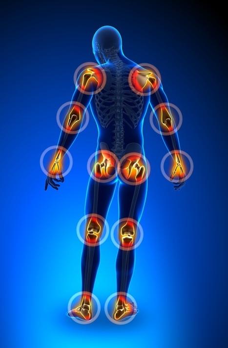 Joints & Bone pain causes and treatment - Artiritis | Health & Digital Tech Magazine - 2016 | Scoop.it