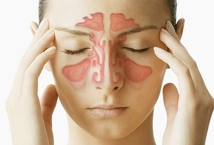 Sinusitis: Causes, Symptoms and Treatments | Tour & Travel India | Scoop.it