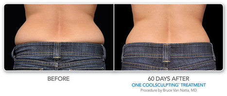 CoolSculpting: Tidbits You Should Know - Tummy Tuck Specialist | cosmetic surgery | Scoop.it