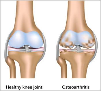 Osteoarthritis of the Knee | Ashutosh Orthopaedic Hospital | Scoop.it
