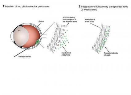 Photoreceptor transplant restores vision in mice | Amazing Science | Scoop.it